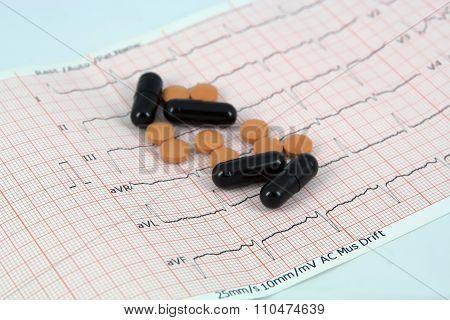 Pills on ECG