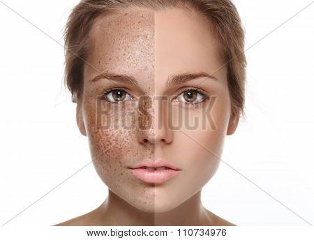 Woman Freckle Half-face Happy Young Beautiful Portrait  Healthy Skin Half
