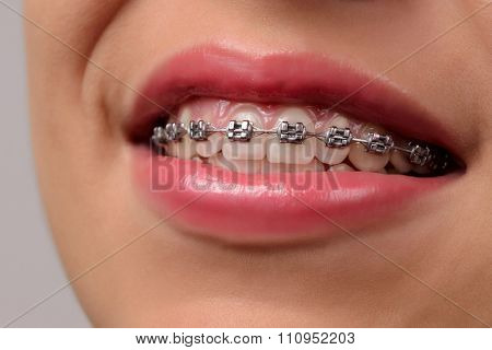 Close-up Dental Braces On Teeth.