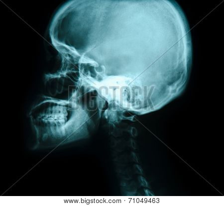 X-ray Picture Of The Skull.
