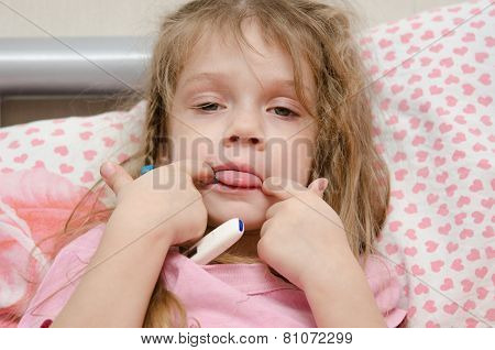 Diseased Three Year Old Girl Showing Tongue