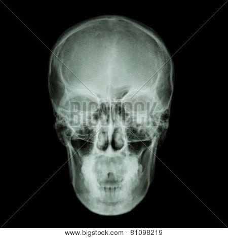 X-ray Skull And Stroke ( Cerebrovascular Accident (cva) )