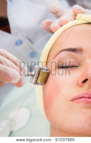 Medical cosmetic procedure. Mikronidling. Beautician performs