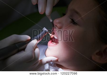 Girl Getting Her Teeth Polished