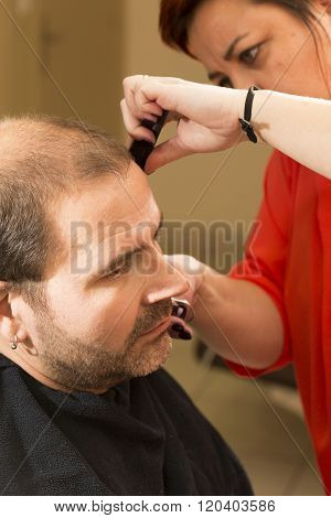 Baldness alopecia or hair loss haircare