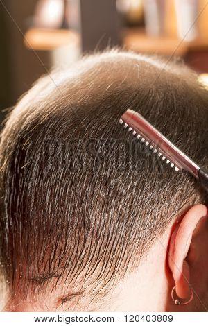 Baldness alopecia or hair loss haircare