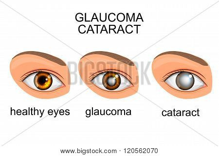 illustration of a healthy eye, glaucoma, cataract