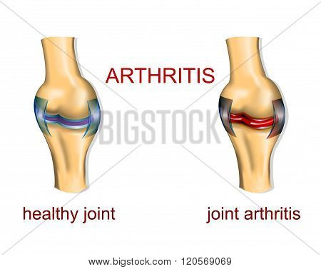 a healthy joint and a joint affected by arthritis. comparison