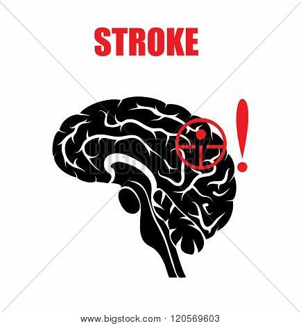 illustration of a stroke. the risk in hypertension