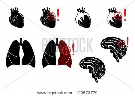 Illustration of pneumonia heart attacks and stroke.