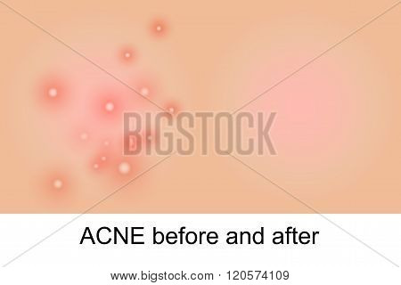 illustration of clean skin and acne. vector