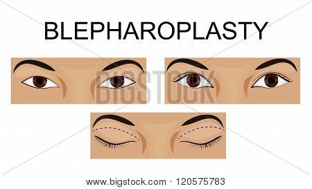 illustration of upper eyelid blepharoplasty before and after.