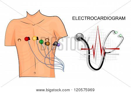 illustration of the electrocardiogram. the patient with electrodes on the chest.