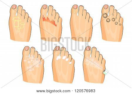 illustration of the various injuries of the feet. fungus, burning, warts, sweating. as well as soap, lotion, and spray