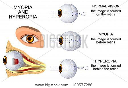 illustration of a healthy eye the eye myopia and hyperopia