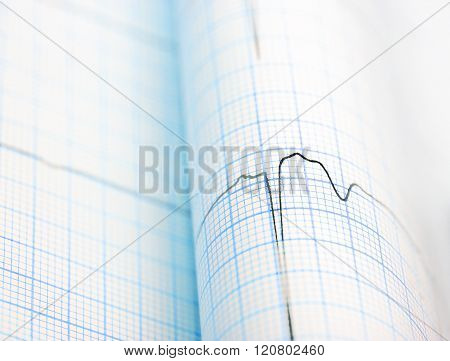Ecg Curve Folded On Paper