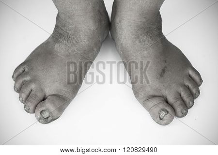 monochrome or back and white of dirty foot or cracked heels isolate on white background