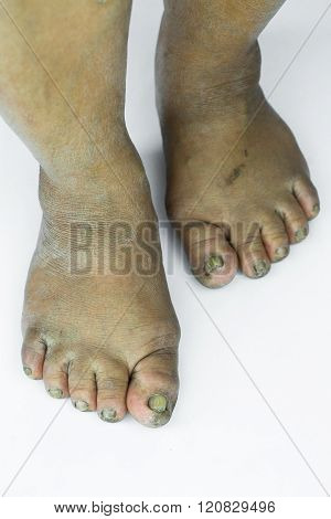 dirty foot or cracked heels isolate on white background, medical or feet health of the people, medical center for heels or feet.