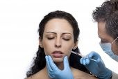 stock photo of collagen  - Treatment with hyaluronic collagen HA injection - JPG