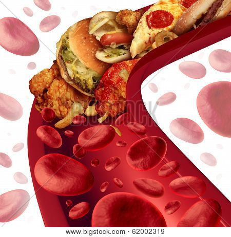 Cholesterol Blocked Artery