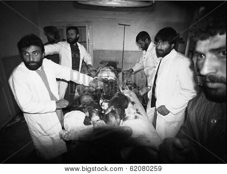 CHARIKAR, AFGHANISTAN - OCT 23: Doctors prepare to amputate the bomb shattered leg of a Northern Alliance soldier in a hospital in Charikar, Afghanistan, on Wednesday, October 23, 1996.