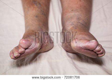 Senior Leg Problems