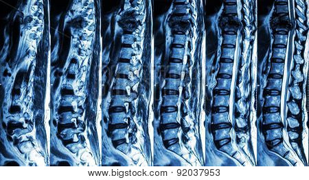 Mri Of Lumbar & Thoracic Spine : Show Fracture Of Thoracic Spine And Compress Spinal Cord