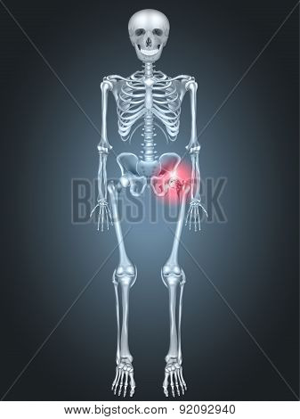 Skeleton With Hip Pain