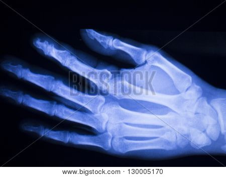 Hand And Finger Injury Xray Scan