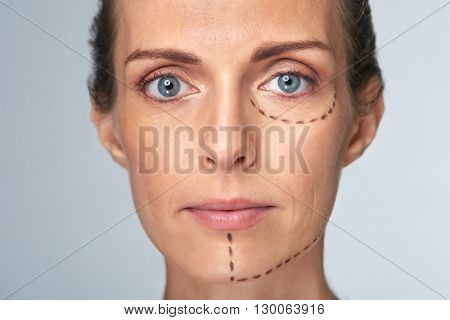 Woman's face with correction lines drawn for lifting procedure in surgery