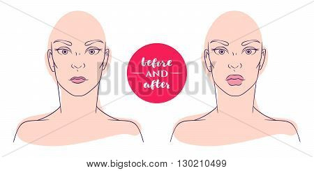 Portrait of a woman before and after with cosmetic defects. Plastic surgery and correction of deficiencies in appearance. Increase thin lips. Correction of the shape of the lips