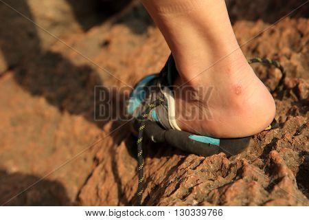 injured rock climber heel stand on stone