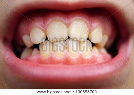 caries on the teeth of the child close up.