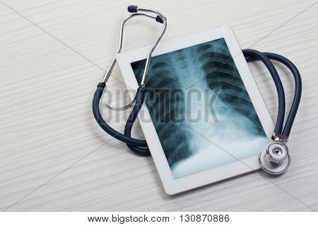 X-rays on the tablet screen with stethoscope on wooden background