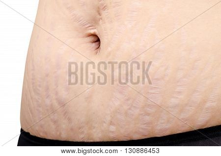 Closeup stretch marks on woman tummy skin