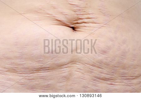 Closeup stretch marks on woman belly skin
