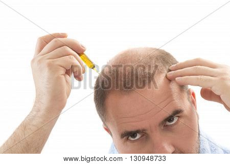 Man alopecia baldness or hair loss - Close up head treatment hand isolated
