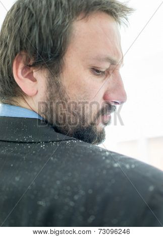 Business man having man dandruff in the hair