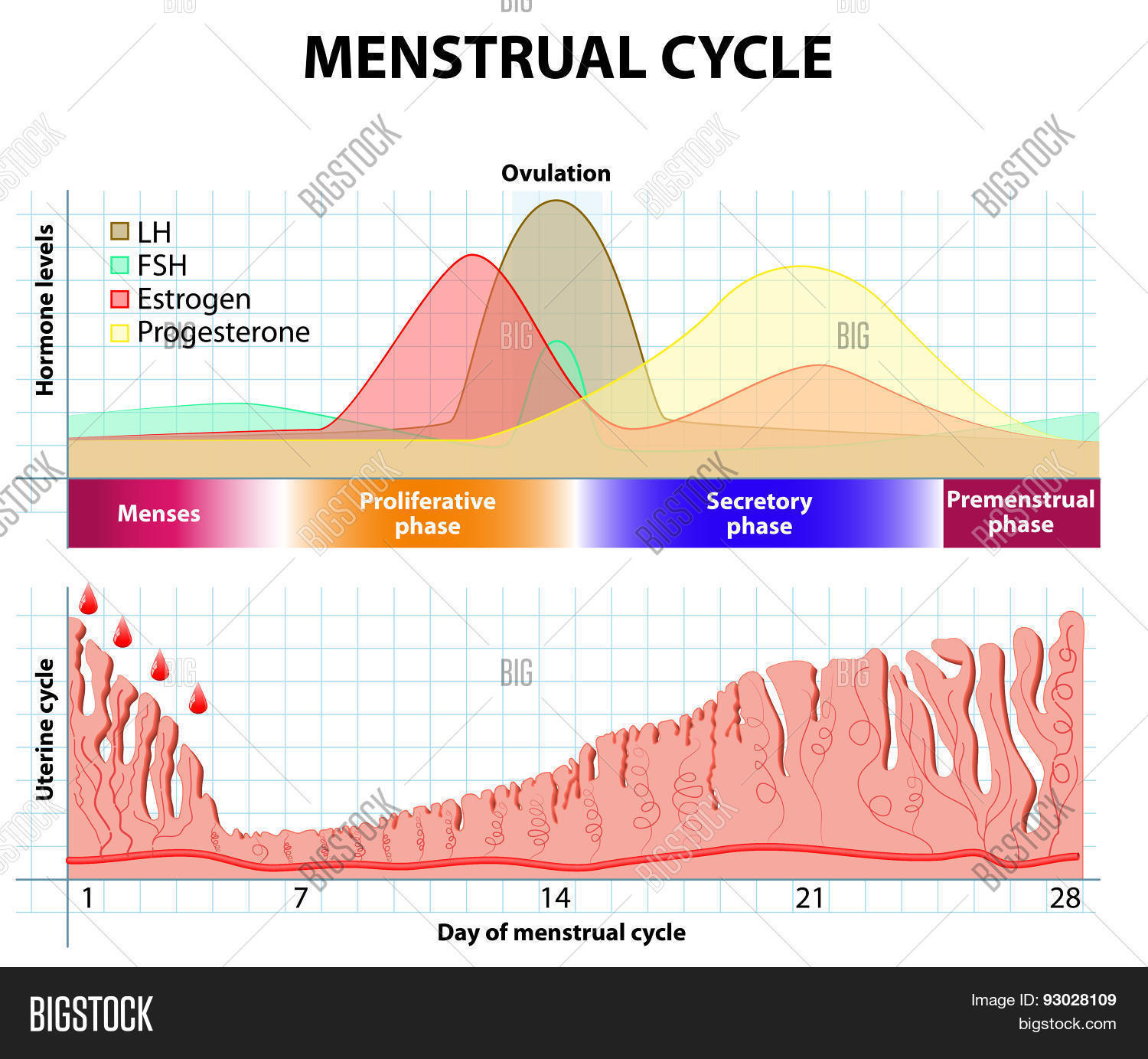 menstrual cycle and complain patient complain {{configctrl2infometadescription}} introduction — abnormal uterine bleeding (aub) (a term which refers to menstrual bleeding of abnormal quantity, duration, or schedule) is a common gynecologic complaint, accounting for one-third of outpatient visits to gynecologists []aub can be caused by a wide variety of local and systemic.
