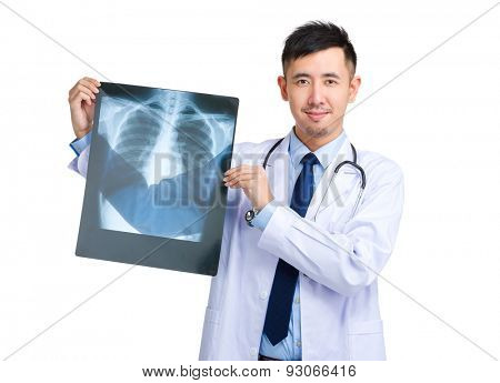 Doctor man holding with x ray