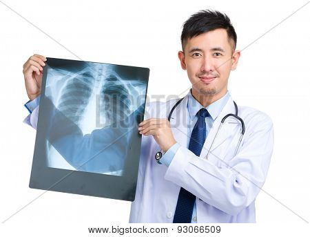 Male doctor hold with x ray