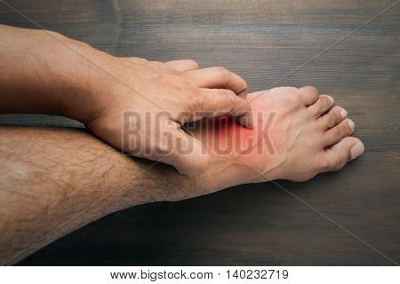 Man scratch the itch with hand itching Foot Concept with Healthcare And Medicine.