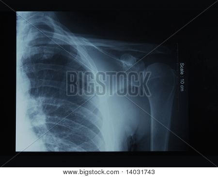x-ray film of shoulder; front view