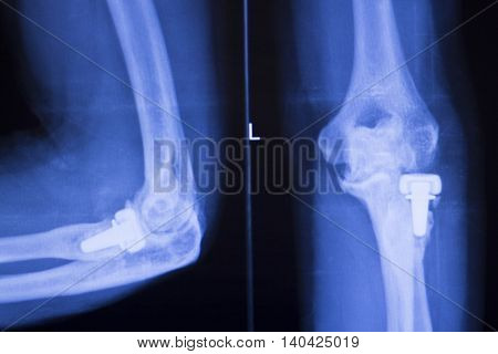 Elbow Joint Orthopedics Implant Xray