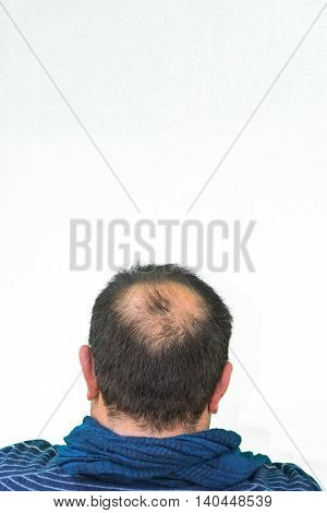 Mature yang man seen from behind in the head begins to lose hair he begins to be old.