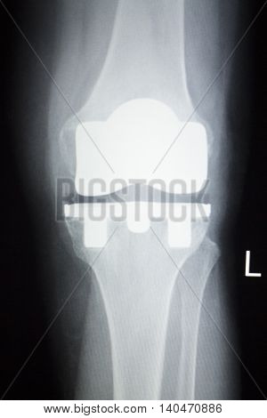 Knee Joint Orthopedics Implant Xray