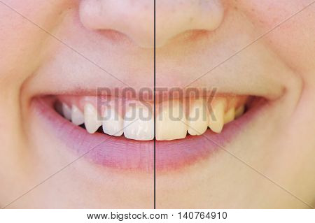 teeth whitening before and after concept. comparision between yellow and white teeth side by side.