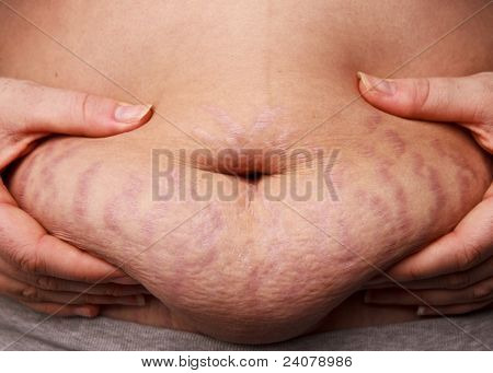 Belly Fat Stretch Mark