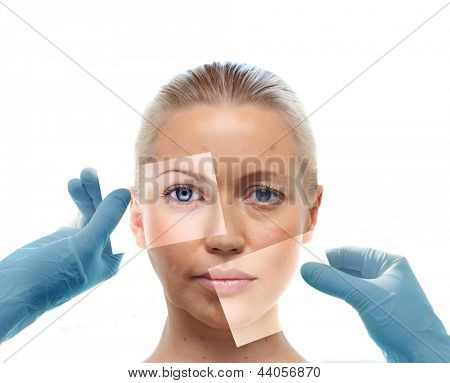 Collage with woman's portrait and hands in medical gloves isolated on white. Beauty treatment concept.