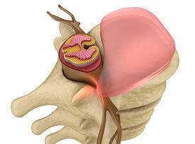 stock photo of herniated disc  - Prolapse of intervertebral disc closeup  - JPG